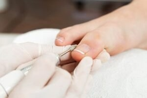 correção de unhas deformadas - Lokabeleza Spa
